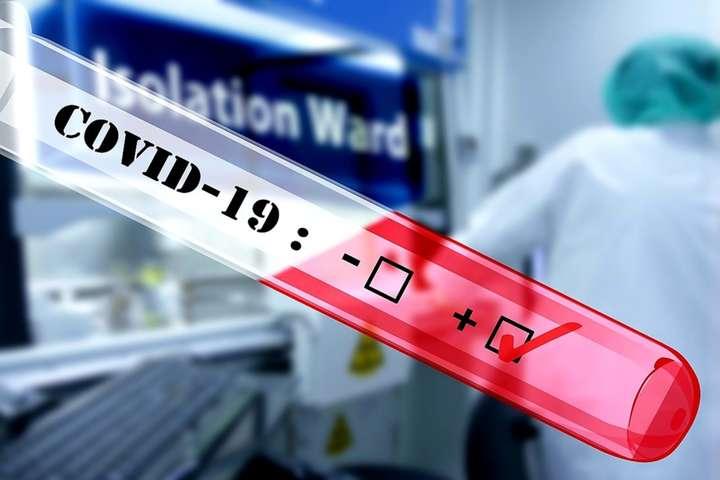Лікарка, яка вдруге хворіє Covid-19: На жаль, МОЗ офіційно не повідомляє про повторні випадки зараження