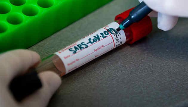 У США коронавірусом заразилися вже майже 164 тис. осіб