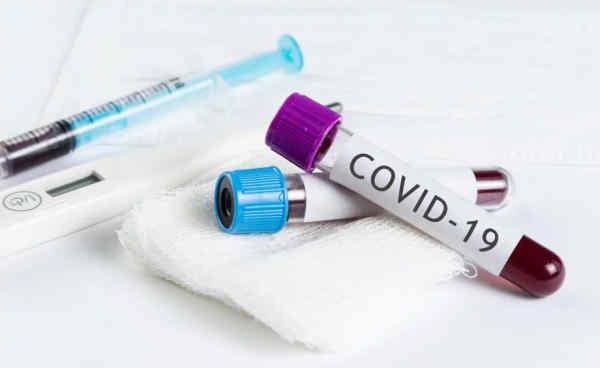 Влада Зеленського блокує виробництво вітчизняних тестів на коронавірус - Гончаренко