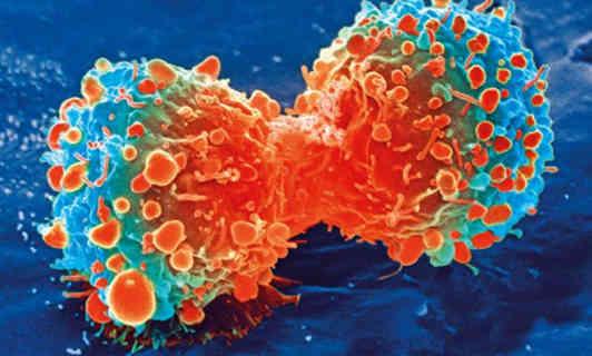 Вчені знайшли новий спосіб лікування смертельних форм раку